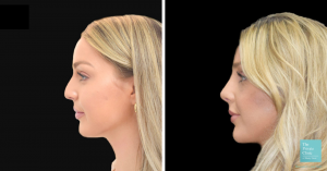 preservation rhinoplasty before and after photo