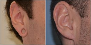 tribal ear correction before after photo