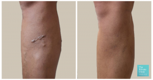 varicose vein removal EVLA treatment before and after photo