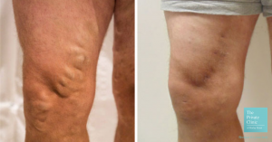 varicose vein removal EVLA procedure before and after