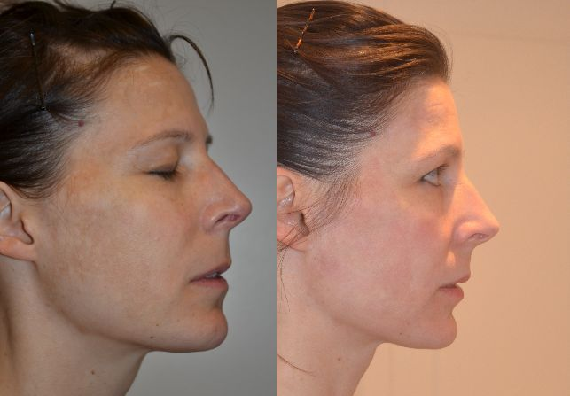 Before and After Pearl Fusion Laser Skin Resurfacing