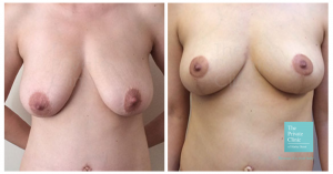 reduction mammoplasty london before and after photo