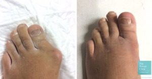 bunion removal surgery before and after photos