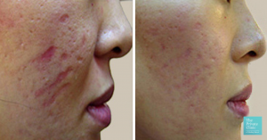 acne scars before and after dermaroller treatment