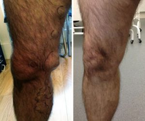 Before and After ELVA varicose veins glasgow