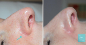 Before and after Cutera CoolGlide for facial veins.