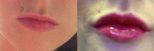 Before and after fillers used to add volume and shape to the lips.