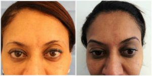 before and after fue eyebrow hair transplant at the private clinic of harley street