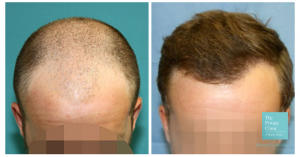 hair transplant midscalp crown area before and after photo