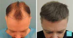 hair transplant frot top crown area before and after photo