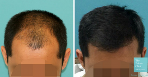 Before and after of FUE Hair Transplant by Dr Raghu Reddy