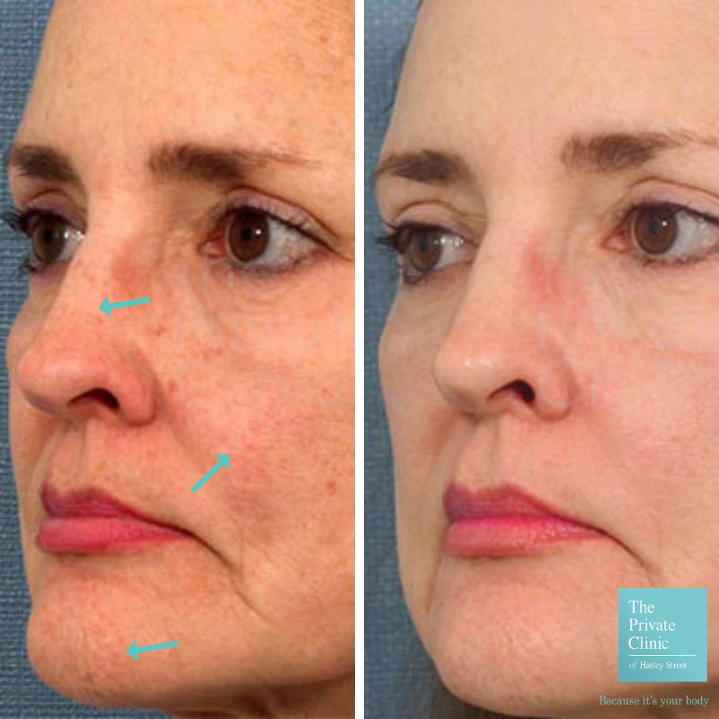IPL Photorejuvenation face treatment before after photo