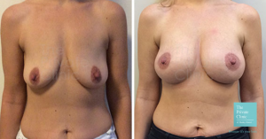 Before and after image of a breast implant and nipple lift