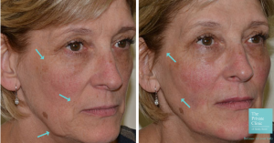 non surgical facelift before and after photo
