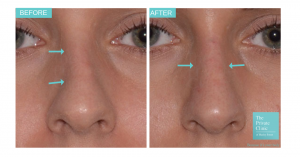 Before and after non-surgical rhinoplasty photo
