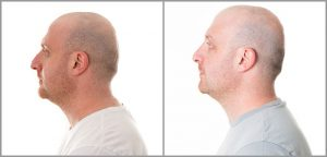 rhinoplasty men before and after photo