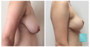 Before and after picture of a breast reduction from the side