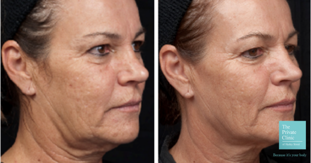Before and after Thermage treatment