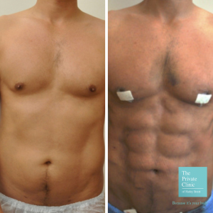 Vaser Liposuction High-Def before and after results