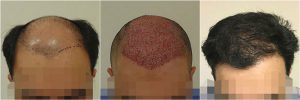 hair transplant before after photo results