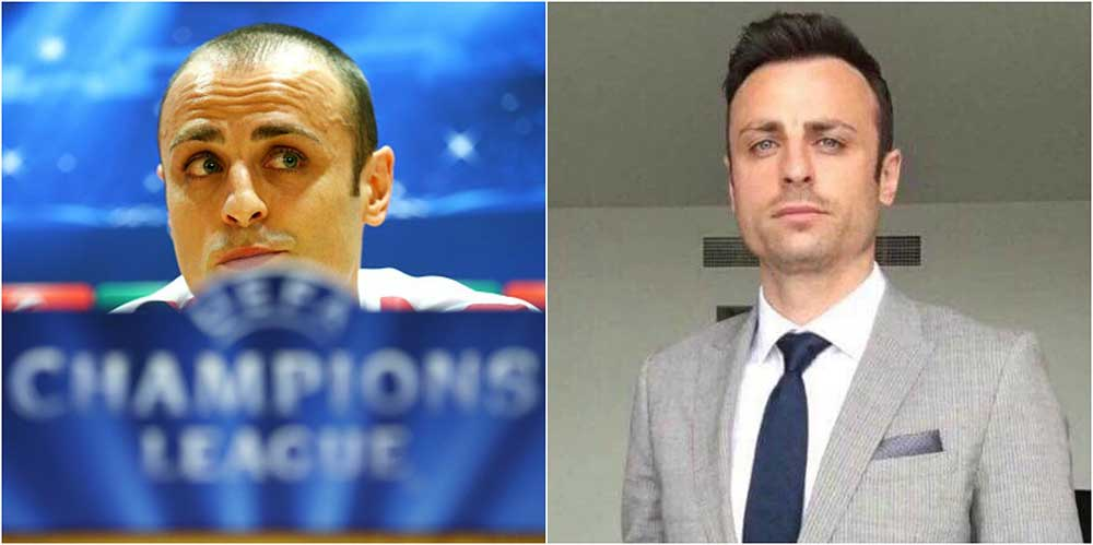 berbatov before after hair transplant the private clinic