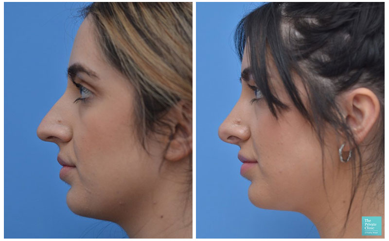 rhinoplasty surgery manchester nose job before after photo
