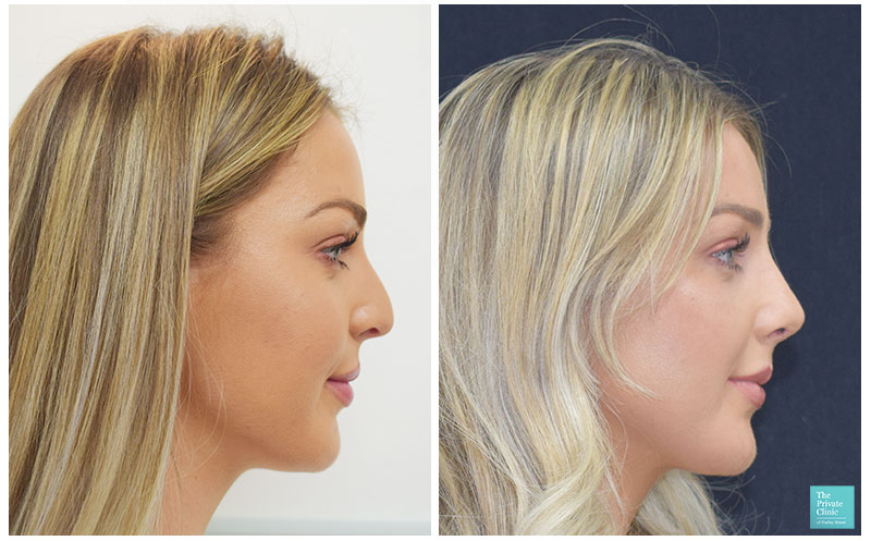 Preservation Rhinoplasty before after photo