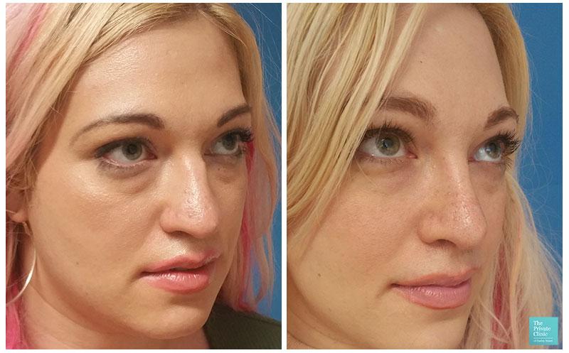 Rhinoplasty nose job before and after photos Northampton, Birmingham.