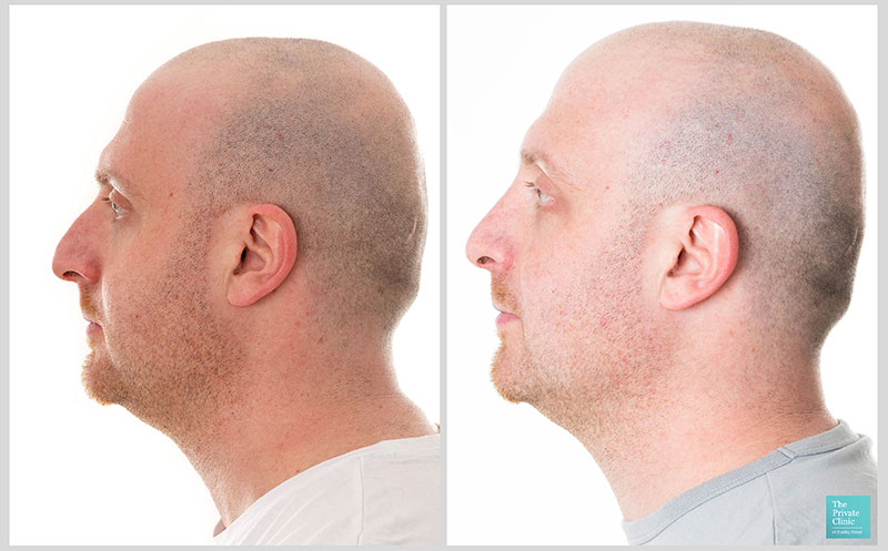 nose job uk before after photo