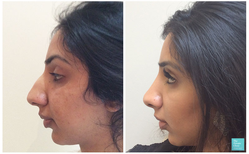 nose job procedure before after photo