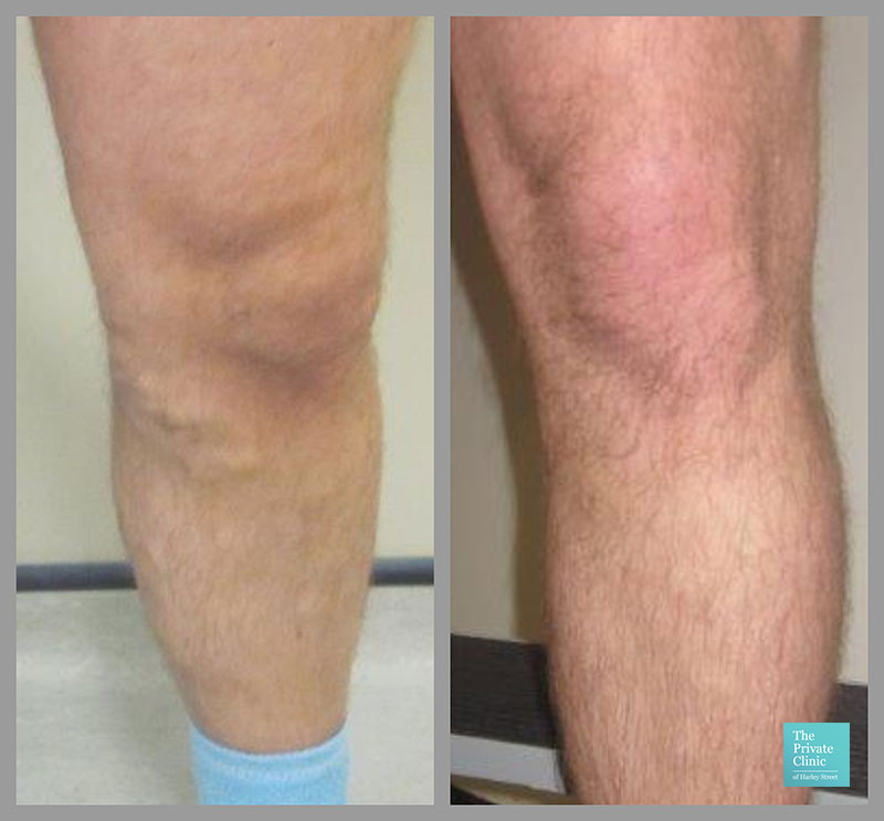 best varicose vein removal surgery before after photos
