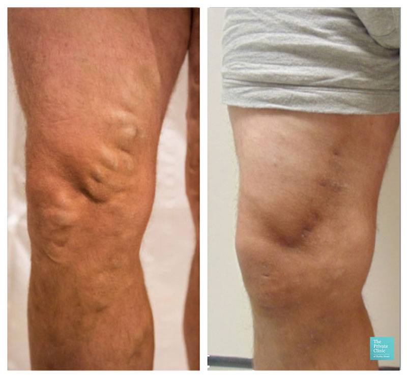 Foam Sclerotherapy treatment for larger leg veins before after photo