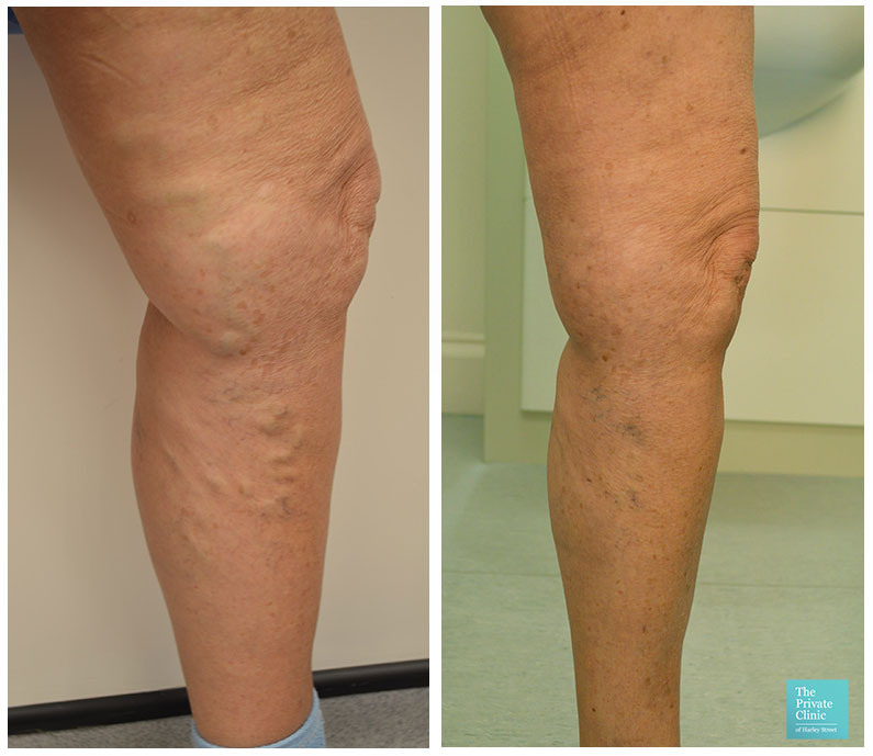 best varicose vein removal surgery evla before after photos results