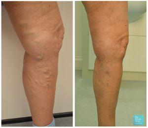 EVLA and Phlebectomy treatment before and after photo