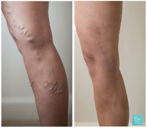 EVLA varicose vein removal surgery before and after photo