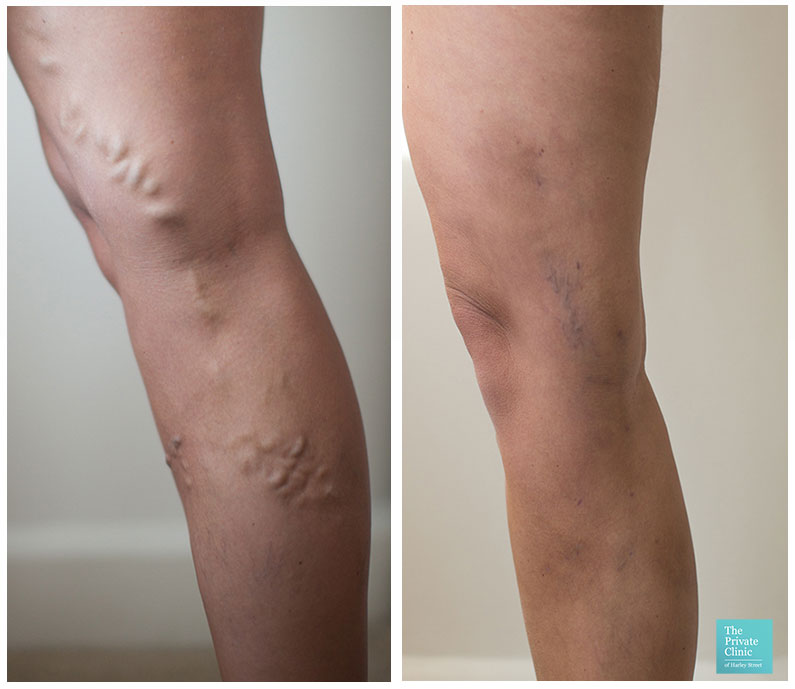 best varicose vein surgery evla before after photos results