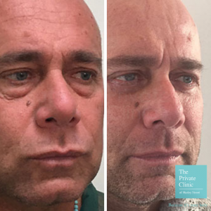 lower blepharoplasty before and after photo