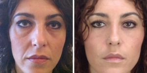 blepharoplasty before and after pictures uk