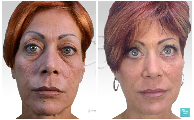 blepharoplasty eye bag removal surgery before after results