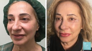 Lower eylid blepharoplasty with fat transfer before after photo