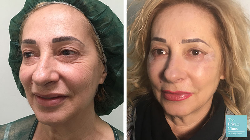 Blepharoplasty with Fat Transfer