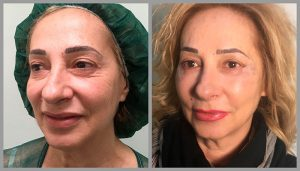 blepharoplasty eye lid eyebag surgery before and after photos