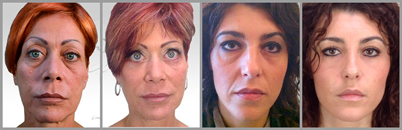 eyelid surgery blepharoplasty procedure before after photos