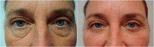 lower blepharoplasty eyelid surgery before after photo