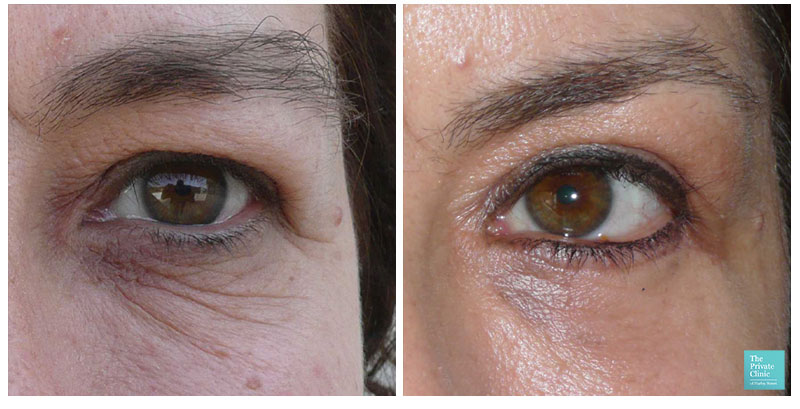 blepharoplasty upper eyelid surgery before after results
