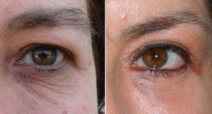 Upper Blepharoplasty eyelid-surgery before after photo