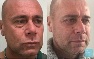 male blepharoplasty eyelid surgery before after photos