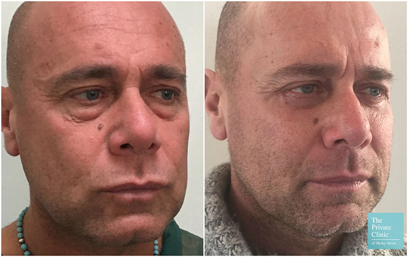 lower blepharoplasty male before after photos