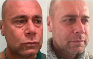 blepharoplasty lower eyelid surgery before after photo