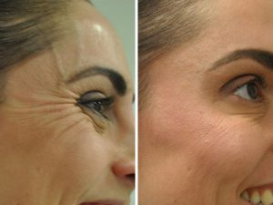 Anti-wrinkle injections to eye lines at The Private Clinic